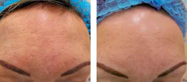 Laser SMA : traitements des imperfections de la peau | Dr