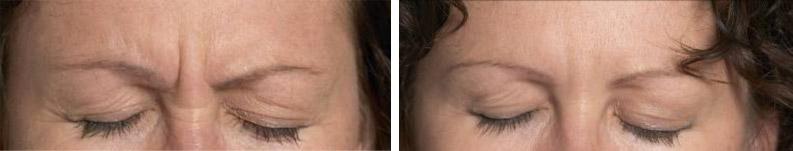 Botox supprimer les rides du visage par injection de for Traitement des charpentes par injection