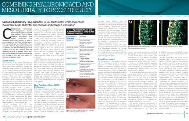 Article sur la mésothérapie associé aux injections d'acide hyaluronique