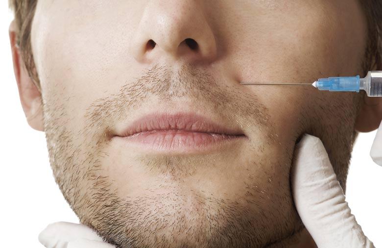 Injections d'acide hyaluronique pour combler les sillons nasogéniens